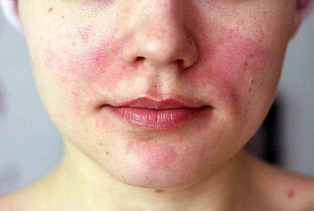 Лечение аллергического ринита