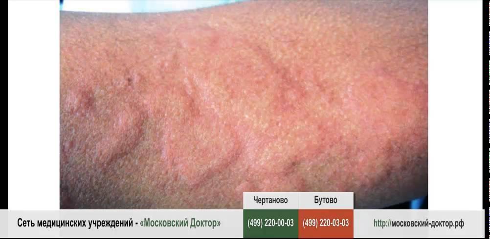 Аллергия на цитрусовые: симптомы, лечение детей и взрослых