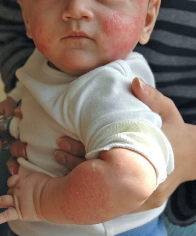 Аллергический дерматит у детей и взрослых: симптомы, лечение | компетентно о здоровье на ilive
