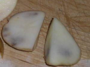 Синдром синего пальца стопы: что это такое и серьезно ли это? - medical insider