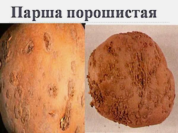 Парша на картофеле: что делать, если появилась, как бороться или как избавиться на клубнях, как лечить землю, а также фото и описание самой болезни
