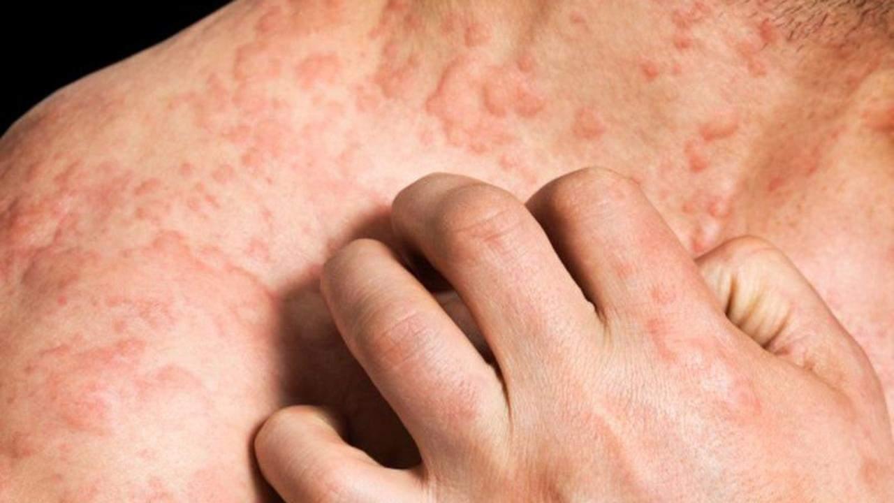 Аллергия на цитрусовые симптомы у взрослых фото