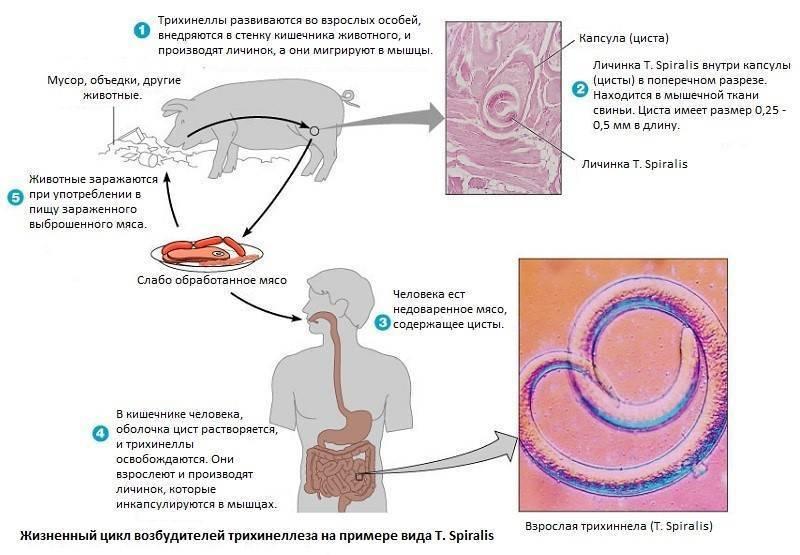 Трихинеллёз - обзор | компетентно о здоровье на ilive