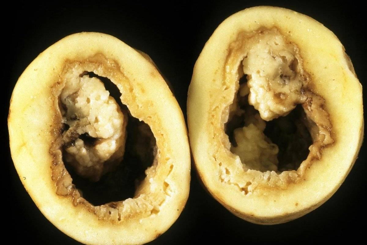 Как защитить картофель от кольцевой гнили — agroxxi
