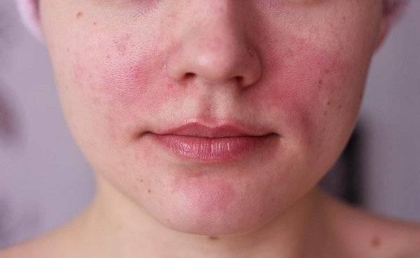 Аллергия на кофе | симптомы и лечение аллергии на кофе | компетентно о здоровье на ilive