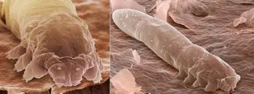 Как бороться с эктопаразитами при стойловом содержании крс?