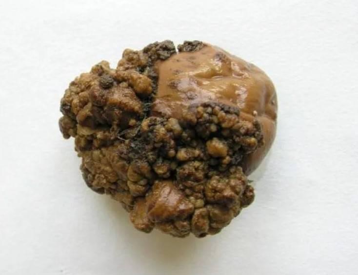 Все, что важно знать про рак картофеля: возбудитель, признаки и защита от заражения