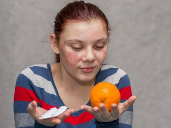 Какой должна быть реакция манту: норма у детей и взрослых, рекомендации по выполнению пробы