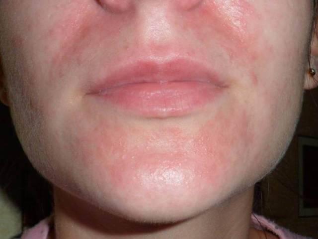 Пищевая аллергия: причины, формы и типичные проявления